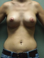 "Anatomic Cohesive Gel Implants ""Gummy Bear"""